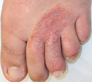 athlete's foot- fungal infection